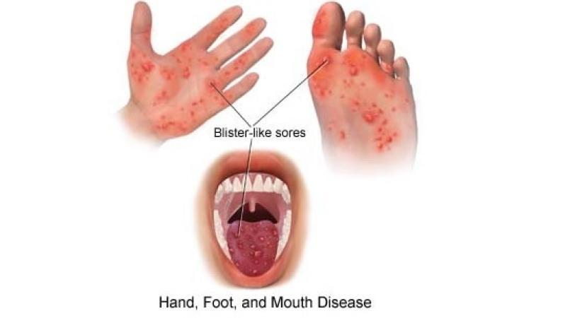 Dream hand foot and mouth disease in infants was not